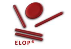 Unglaublicher Projekterfolg bei Novomatic mit ELOP®